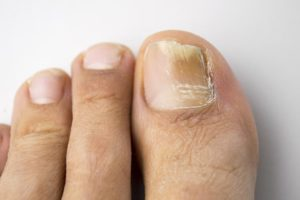 Children With Nail Fungus